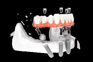 Имплантация всех зубов за 1 день